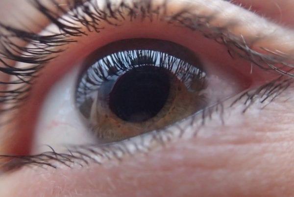 Glaucoma: Treatment, Causes, Symptoms, Diagnosis