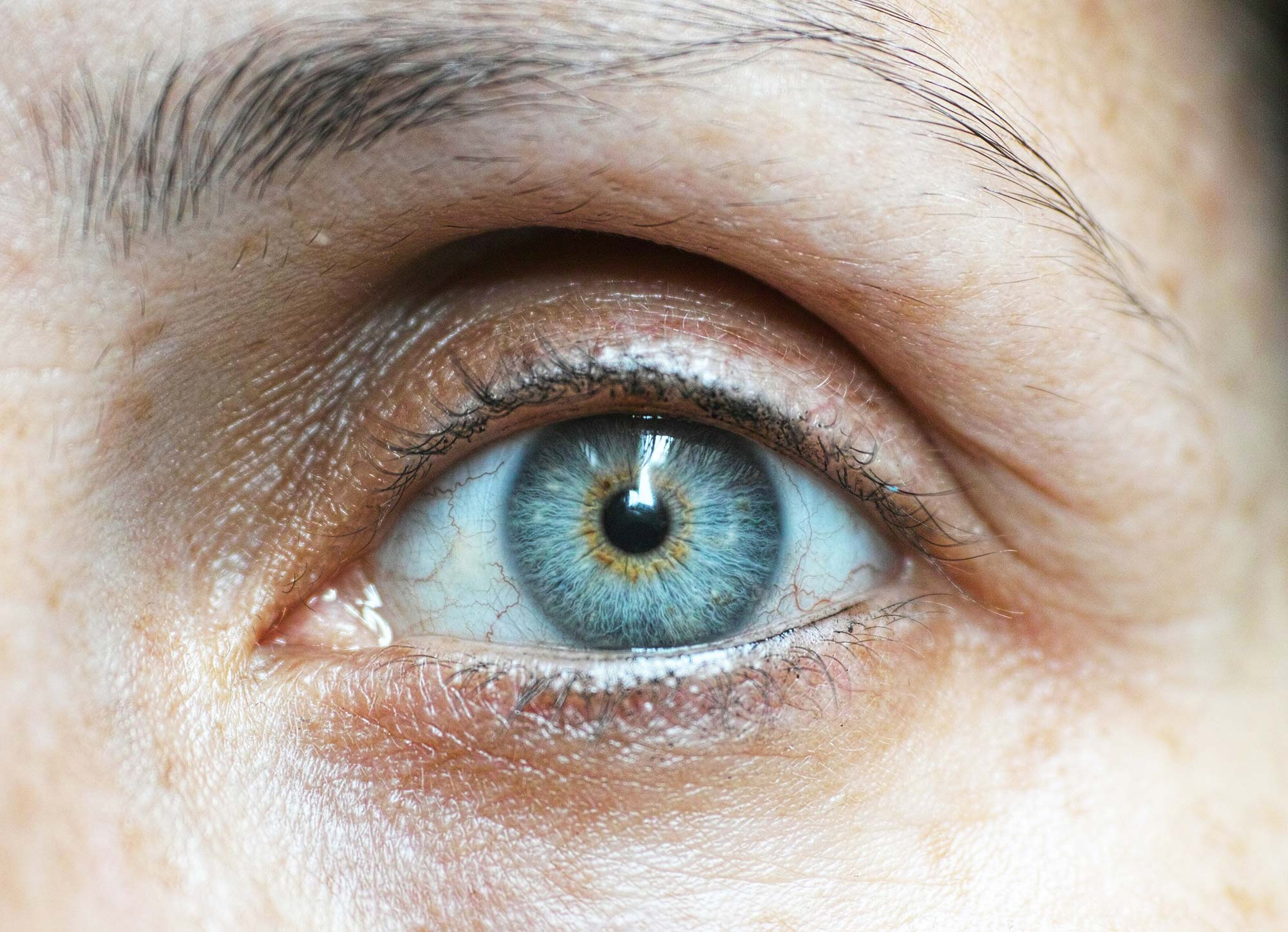What is Pink Eye: Treatment, Symptoms, Diagnosis