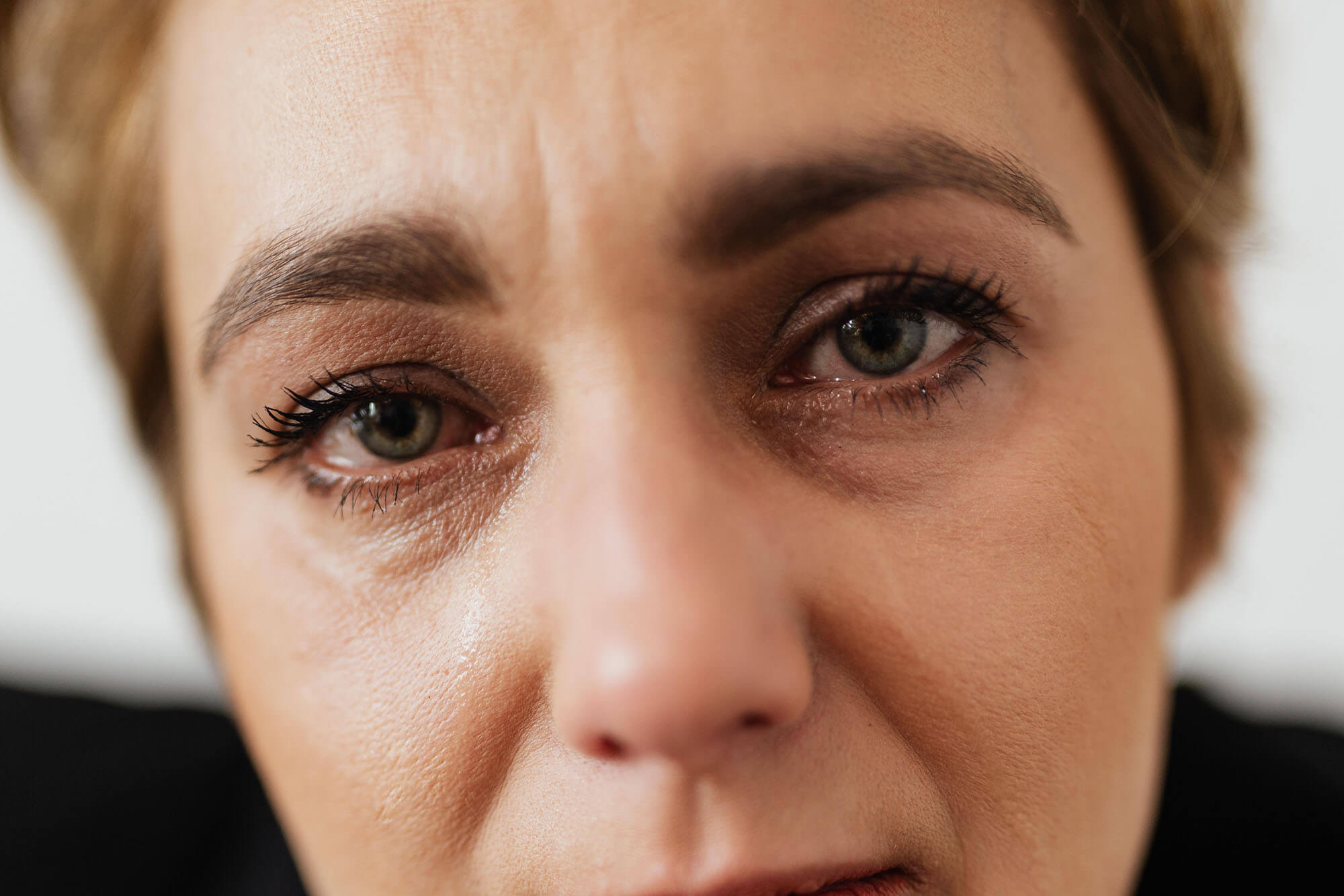 Allergic conjunctivitis Treatment, symptoms, and causes