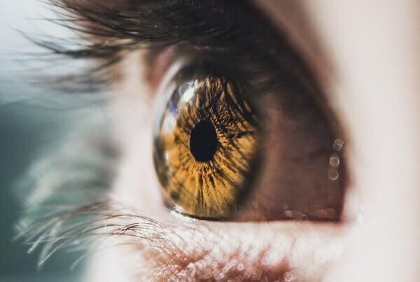 Hazel Eyes vs Central Heterochromia